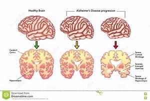 Alzheimer's Disease Progression Stock Vector ...