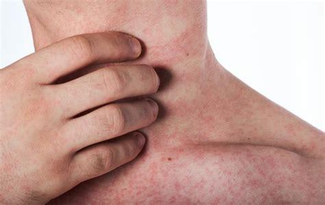 dengue fever rash lovetoknow