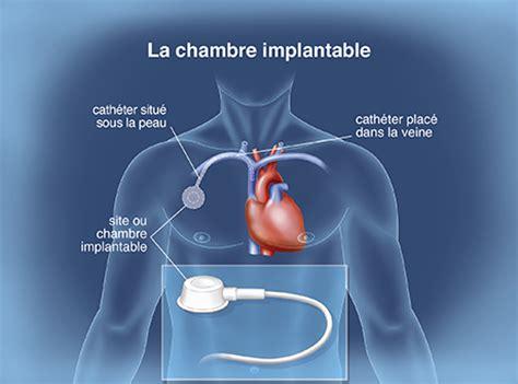 chambre implantable pour perfusion le traitement en pratique la prise en charge de la