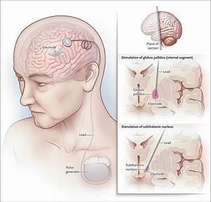 What Is Parkinson U0026 39 S Disease