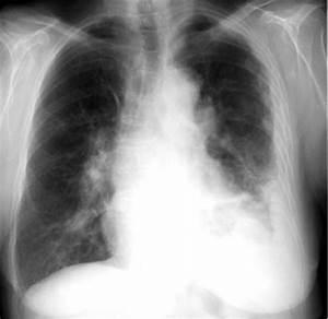 Medical Pictures Info – Asbestosis  Pneumonia Asbestos