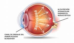 Glaucoma Enfermedades de los ojos Vissum