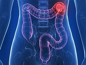 Cea Blood Test Improves Stratification In Colon Cancer