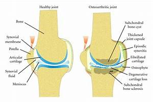 Healthy  On Left  And Osteoarthritic Joints  1   Joint