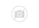 Как снять боль в голове при шейном остеохондрозе лечение