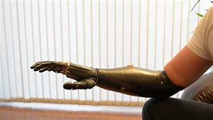 'Terminator' arm is world's most advanced prosthetic limb ...