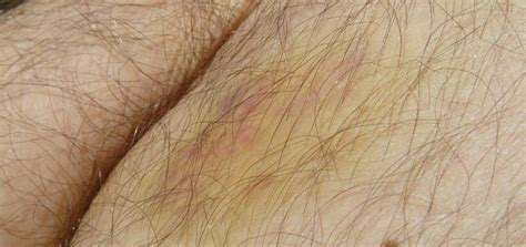 bluterguss haematom ursachen beschwerden diagnose