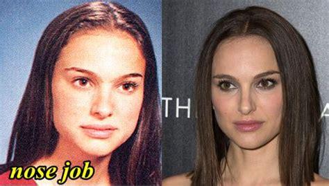 Natalie Portman Plastic Surgery Nose Job Boob Bra Size