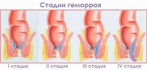 Как лечить геморрой и полипы кишечника