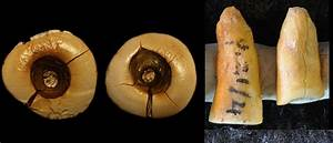 Ancient Dentistry - 13,000-Year-Old Tooth Filling ...