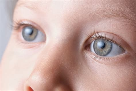 cortical visual impairment    discovery eye