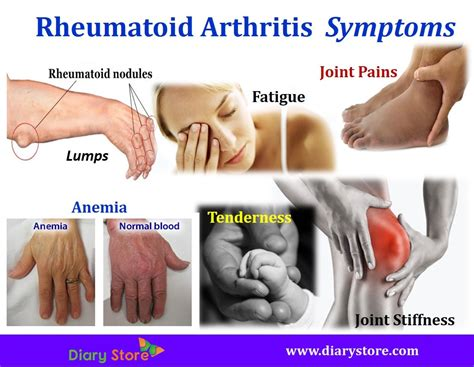 Arthritis Types Symptoms Prevention Control. How Does A Satellite Dish Work. Best Short Term Savings Rates. Special Education Certificate Program. Business Lawyer San Francisco. Study Marine Biology Online Dish Flex Plan. Continuing Care Retirement Communities Illinois. New York Employment Lawyers Ad Hoc Testing. Vermont Mutual Insurance Calgary Maid Service