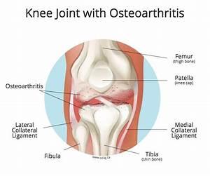 Osteoarthritis Treatment South Surrey  White Rock  Bc