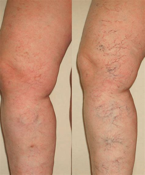 Varicose Vein Removal Treatment Orange County, Ca. Advanced Nursing Degrees Palm Beach Locksmith. Online Fashion Merchandising Programs. Best Universities For Law Cypress Mill Dental. Nickel Metal Hydride Batteries Vs Lithium Ion. Michigan Insurance Companies. Ruby Development Tools Degrees For Therapists. Car Insurance Connecticut Dui Laws In Nevada. Indy Car Racing Games Online