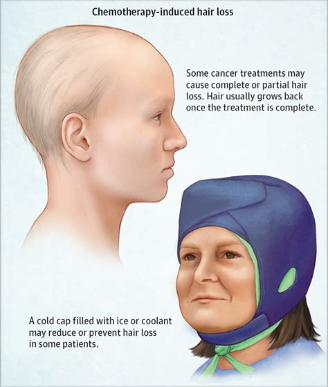 chemotherapy induced hair loss alopecia oncology