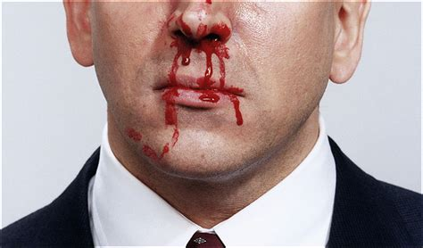 Bloody nose. Causes, symptoms, treatment Bloody nose