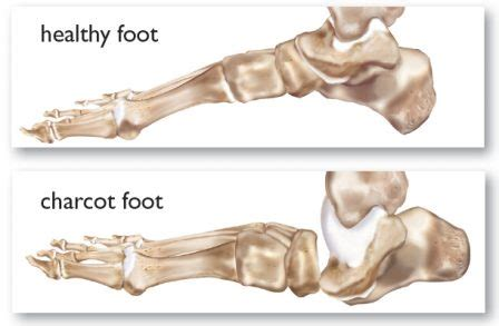 Charcot's Disease Causes, Symptoms And Treatment. Elderly Infographic Signs. Solar Signs. Sticker Signs. Medical Clinic Signs. Circle Triangle Signs Of Stroke. Achilles Signs. Traffic Nys Signs. Gingerbread Signs Of Stroke