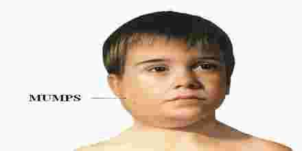 Mumps in Adults Photos