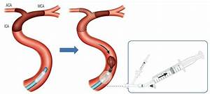 Role Of Balloon Guide Catheter In Modern Endovascular