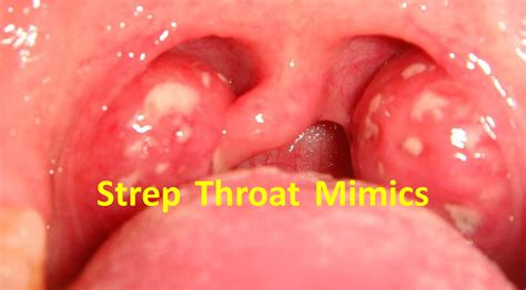 Strep Throat Photos Pictures Photos