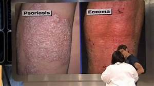 What is the difference between psoriasis & eczema ...