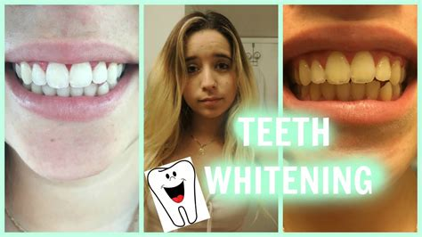 Teeth Whitening Tutorial