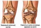 Гель или мазь при гонартрозе коленного сустава