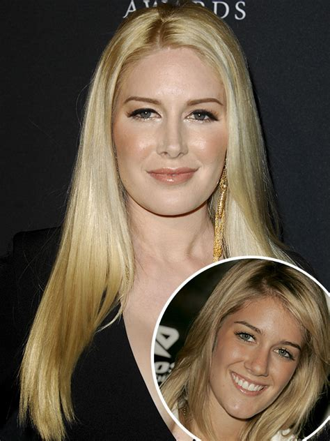 Heidi Montag Almost Died During Plastic Surgery See Her
