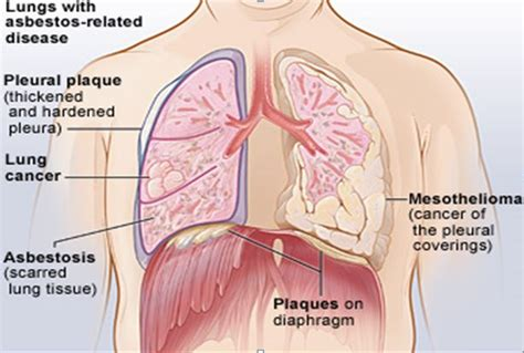 effects of asbestos harmful effects of asbestos asbestos