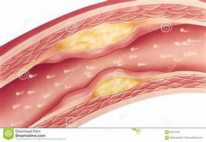 Atherosclerosis Cartoon Vector