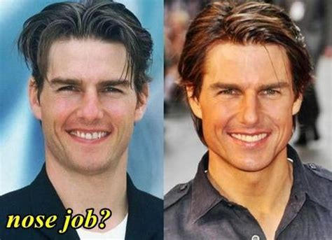 chris owen ear surgery tom cruise before and after nose job celebrity plastic