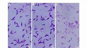 Giemsa Staining Of Toxoplasma Gondii  Tachyzoite Parasites