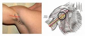 Lump in Armpit is one Indicator of Lymph Nodes Cancer ...