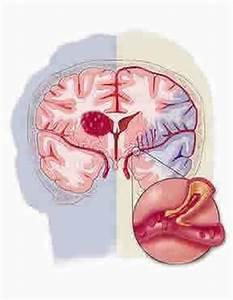 Te weinig zuurstof hersenen