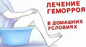 Что делать при очень сильных болях при геморрое