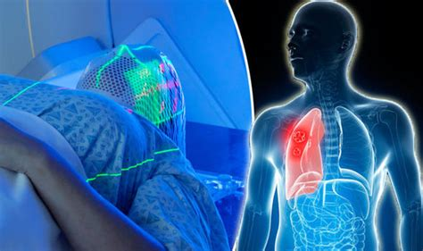 lung cancer targeted proton beam treatment  stop