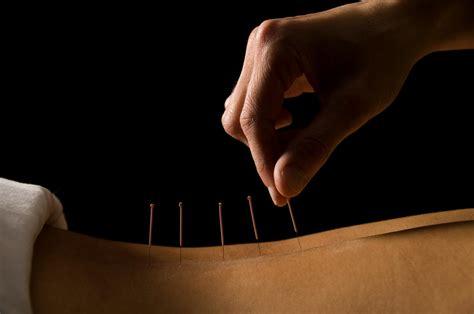 acupuncture pour maigrir acupuncture pour maigrir est rembours 233 e