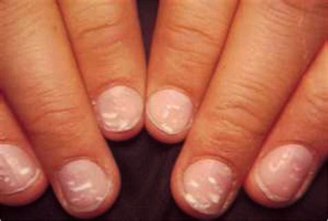 white spots on nail beds chapter 9 nail diseases and disorders at trend setters