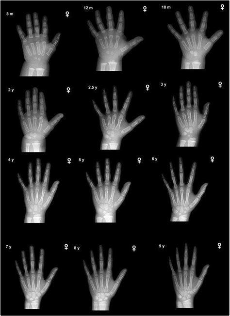 bone age alchetron   social encyclopedia