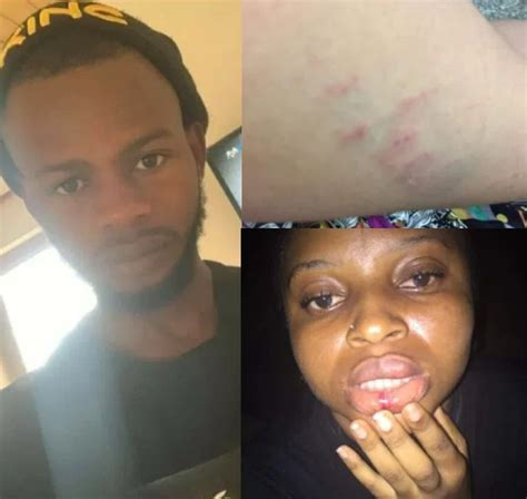Nigerian Lady Tells How She Was Allegedly Beaten And R