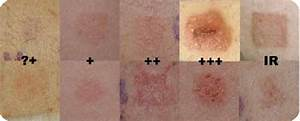 Patch Test Scoring According To The International Contact