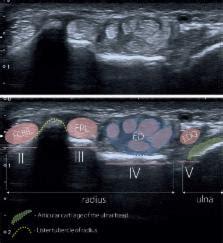 wrist ultrasound examination scanning technique