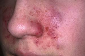 Seborrheic Dermatitis Picture (Hardin MD Super Site Sample) Dermatitis