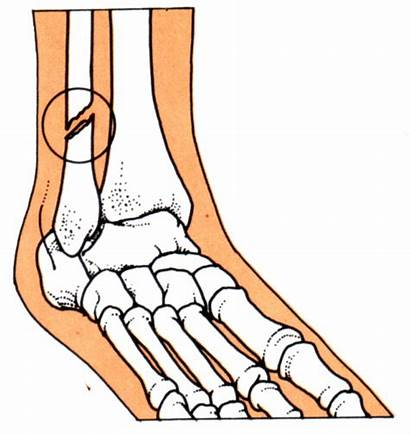 Broken Leg Clipart Bone Bones Fracture Cartoon
