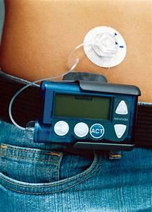 diabetes insulinpumpen retten menschenleben diabetes