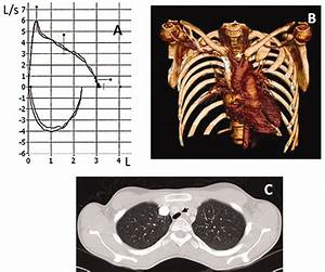 Irreversible Airway Obstruction Due To Innominate Artery