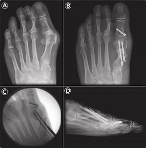 A  Ap View  Incongruous Moderate Hallux Valgus   B  Mica