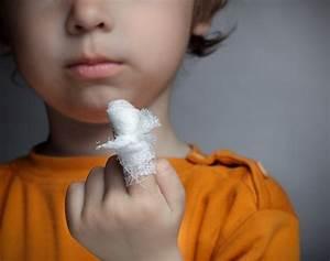 Боль в ногте большого пальца ноги при грибке