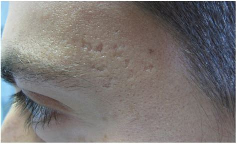 acne scarring treatment removal austin central texas
