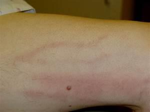 Superficial thrombophlebitis = التهاب الوريد الخثري السطحي  Superficial